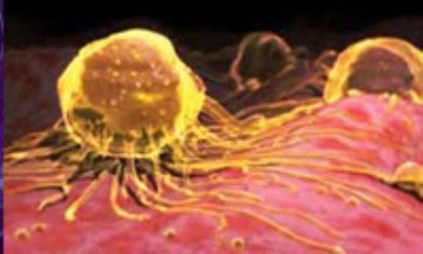 تشخیص زودرس سرطان پستان